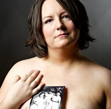 Career Guidance - My Cancer Story: I Had a Preventative Mastectomy